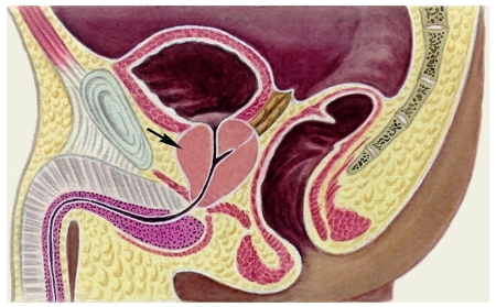 Папиллома: виды, лечение, симптомы, удаление