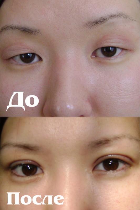 Пластическая хирургия в Бишкеке